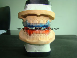 Anti-Snoring Appliance pictures & photos