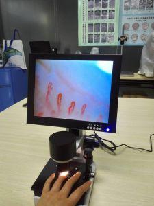 Microcirculation Microscope pictures & photos