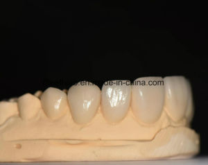 Natural and Aeshetic Dental Emax Facings pictures & photos