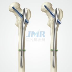 ... Femoral Nail Antirotation) (401005) - China Pfna, Intramedullary Nail: http://szjmryl.en.made-in-china.com/product/cKDJNamuYAkC/China-PFNA-Proximal-Femoral-Nail-Antirotation-401005-.html
