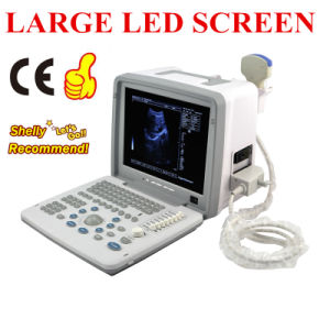 Full Digital LED Portable Ultrasound Scanner/Ultrasound Machine (RUS-9000B) - Martin pictures & photos