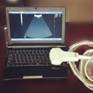 Low Price Portable Laptop Ultrasound Machine pictures & photos