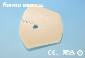 CE FDA Approved Absorb Exudates Buckly Foam Wound Dressing pictures & photos