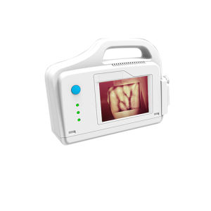 Pediatric Infrared Vein Illuminator Vein Detector Vein Finder (SC-B200) pictures & photos