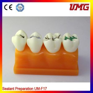 Dental Laboratory Products Dental Education Teeth Model Um-F17 pictures & photos