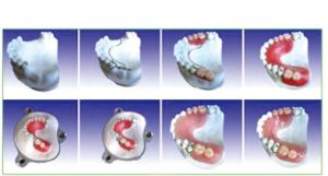 Dental Teeth Model of Producing Steps of Articulator pictures & photos