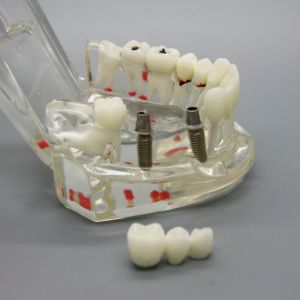 Dental Implant Disease Study Teachin Teeth Model Restoration Bridge Tooth pictures & photos