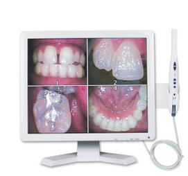 Best Quality Lowest Price Wilress Dental Intraoral Camera with CE, FDA pictures & photos