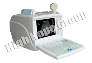 High Hope Medical - Digital Portable Ultrasound Scanner pictures & photos