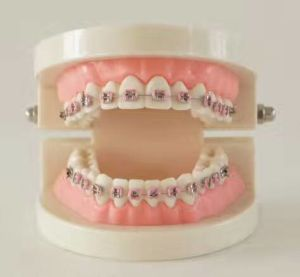 Dental Tooth Study Model Orthodontic Model with Different Brackets pictures & photos