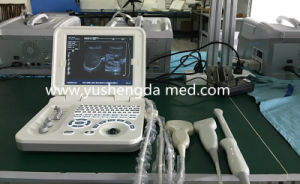 Ysd4000c Ultrasound Scanner Diagnosis Medical Equipment Ultrasonic System pictures & photos