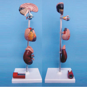 Human Organs Disease Lesion Under Hypertension Medical Demonstration Model pictures & photos