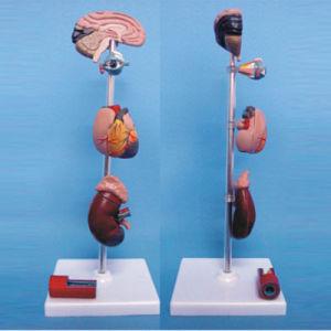 Human Organs Disease Lesion Under Hypertension Medical Demonstration Model