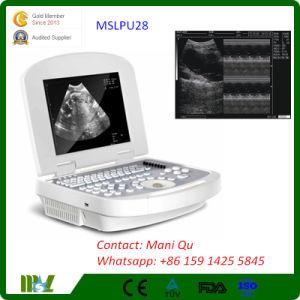 New Cheapest Digital Portable Laptop Ultrasound Scanner Best Price (MSLPU28)