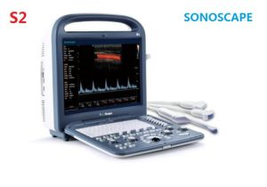 S2 High-Performance 4D Portable Color Doppler Ultrasound System pictures & photos