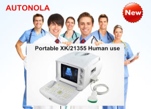 Xk21355 Portable USG/Medical Equipment