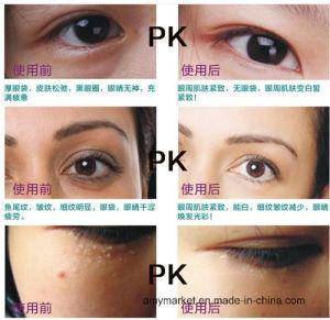 Remove Dark Circle Eye Gel Eye Essence Afy Gold Snail Eye Cream 30g pictures & photos