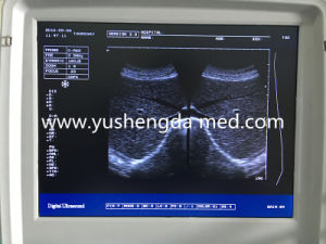 High Qualified Diagnosis Medical Equipment Portable Ultrasound Scanner pictures & photos