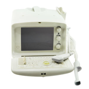 10 Inch Portable Ultrasound Machine/Scanner with 3.5MHz Convex Probe-Candice pictures & photos