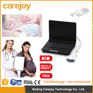 Full Digital Portable Ultrasound Scanner Machine for Sale-Candice pictures & photos