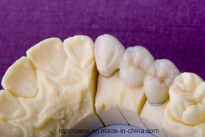 Denture Porcelain Fused to Metal Crown Cocr pictures & photos
