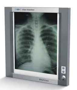 X-ray Film Viewer Film, Viewbox, Observation Lamp, Film Illuminator (TYL Series) pictures & photos