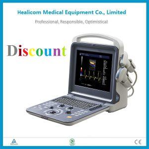 Huc-300 Portable 4D Color Ultrasound Diagnostic System Ultrasound Machine pictures & photos