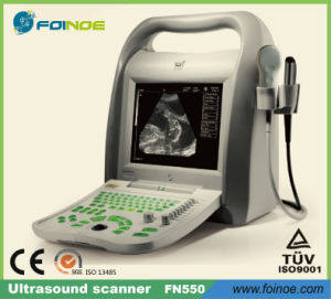 Fn550 Full Digital B Model Portable Ultrasound Machine pictures & photos