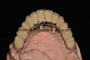 Affordable Dental Implants Full Arch Bridge pictures & photos