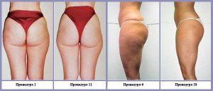 Vacuum Cavitation Body Shaping Kuma Shape 3 Cellulite Removal Slimming pictures & photos