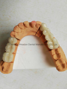 Pfm Crown Denture for Clinic From Chinese Dental Lab pictures & photos