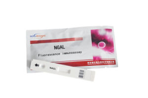 Ngal Rapid Test Kits by Fluorensense Immunoassay Analyzer pictures & photos