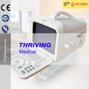 Thr-Us6601 Medical Portable Ultrasound Devices pictures & photos