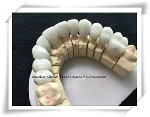 Capteck Crown for Chinese Dental pictures & photos
