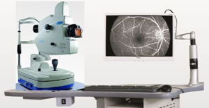Fundus Camera&Ffa Model PT-Aps-Ber, Model a Medical Apparatus pictures & photos