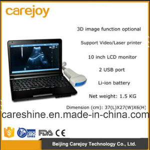 Portable Digital Ultrasound Machine Scanner with Convex Probe pictures & photos