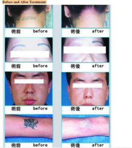 Sincoheren Q-Swith ND YAG Laser Tattoo Removal and Skin Care Sr Carbon Peeling pictures & photos