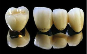 Metal Pfm Crown Denture for Clinic From Chinese Dental Lab pictures & photos