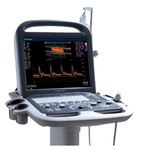 Sonoscape S2 Cheappest 3D 4D Portable Color Doppler Ultrasound Scanner pictures & photos