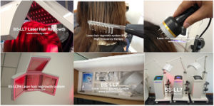 650nm Wavelength Laser Diode Hair Regrowth Machine, Hair Loss Treatment (BS-LL7H) pictures & photos