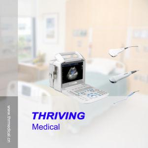 Portable Color Doppler Ultrasound Scanner (THR-CD003V) pictures & photos
