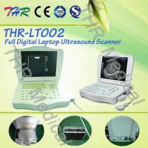 Thr-Lt002 Hospital Medical Portable Ultrasound Machine pictures & photos