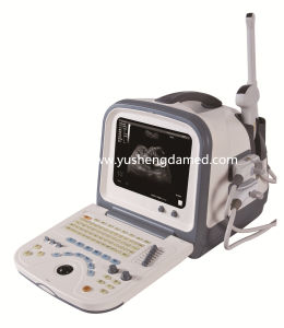 Ce Medical Equipment Digital Hand-Held Portable Ultrasound Machine pictures & photos
