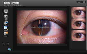 Digital Imaging Solution for Cso and Huvitz Slit Lamps pictures & photos