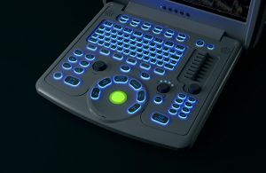 Portable Laptop Color Doppler Ultrasound System with Good Price pictures & photos