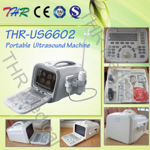 Portable Digital 3D B/W Ultrasound Scanner (THR-US6602) pictures & photos