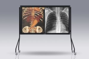 (JUSHA-SUPER65T) Grayscale&Colour Big Size Medical Display pictures & photos