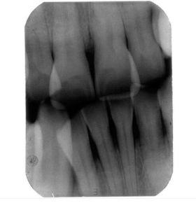 Dental Portable Handheld X-ray Machine Unit Digital Control Film Position pictures & photos