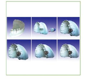 Dental Teaching Model of Producing Steps pictures & photos