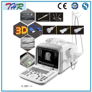 Portable Ultrasound Diagnostic Equipment (THR-US6602) pictures & photos